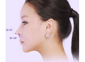 上海美莱做鼻尖整形可以改善的好蒜头鼻吗?