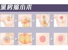 上海胸部调整大概多少钱,贵吗?