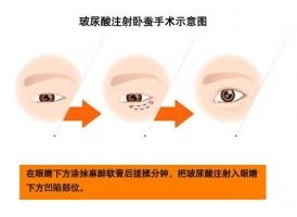 美莱如何拥有卧蚕眼睛?人造卧蚕方法有哪些?