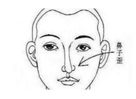 """鼻子歪了怎么办?手术""""方法""""怎么选"""