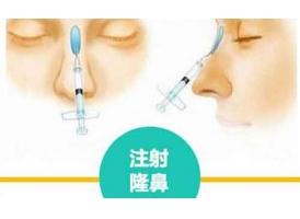 玻尿酸垫鼻子多少钱,上海医院贵不贵?