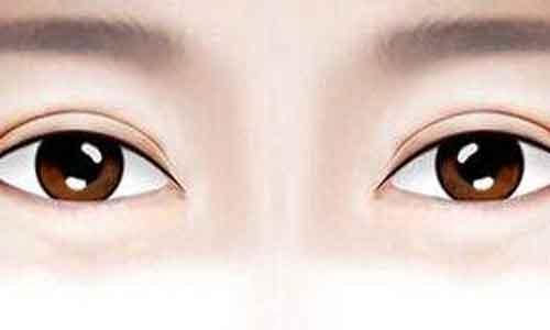 """上海双眼皮吸脂多少钱啊,""""贵""""不贵?"""