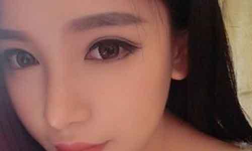 """刚刚割完双眼皮之后的样子_上海双眼皮手术后几天拆线""""好""""?_上海美莱整形美容"""