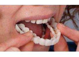 """上海牙齿缺失不及时修复的""""危害""""是什么?"""