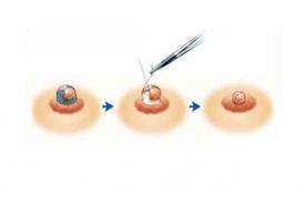上海乳晕缩小术手术过程是怎样的?
