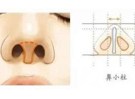 """什么是鼻小柱延长,美莱使用的""""材料""""有哪些?"""