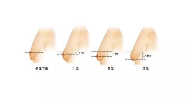 上海做隆胸手术费美莱是多少钱?