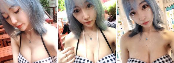 上海美莱深v动感丰胸案例