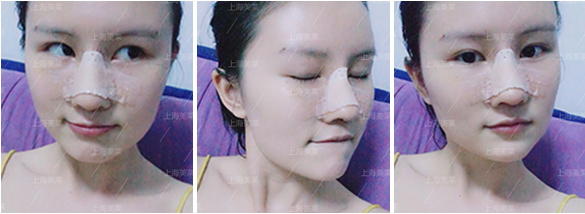上海美莱脂肪面部填充案例