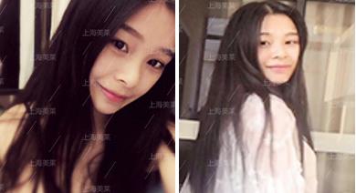 上海美莱瘦脸针案例