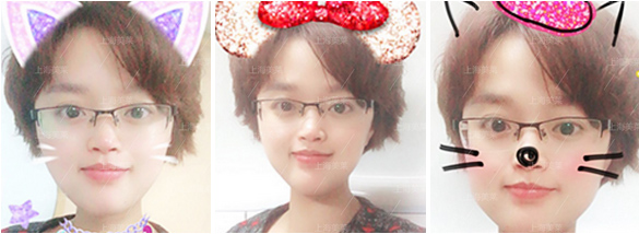 上海美莱注射瘦脸针案例