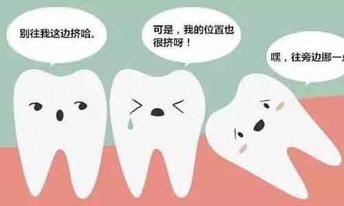 """智齿为什么会""""横着""""长?上海做矫正拔智齿有什么好处?"""