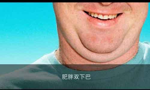 胖的有双下巴怎么办?美莱面部吸脂有效改善!