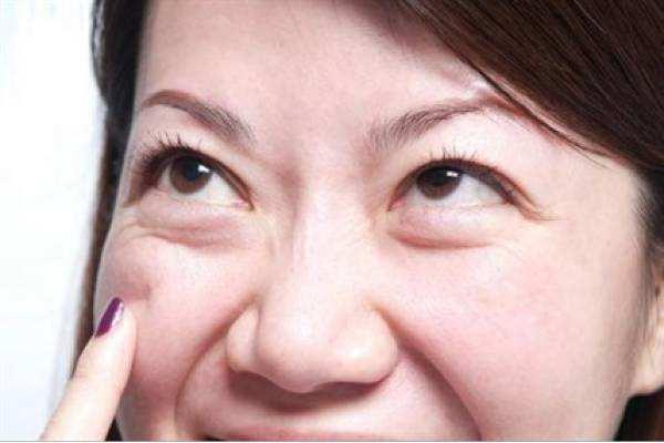 上海美莱整形,臃肿眼袋应该要怎么除去呢