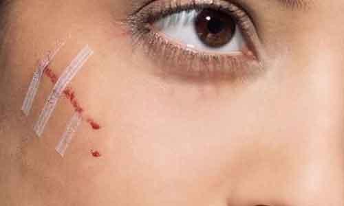 疤痕体质怎么办?别怕,美莱有祛疤专家!