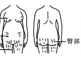 哪些人容易长妊娠纹?美莱激光去妊娠纹,快速有效!