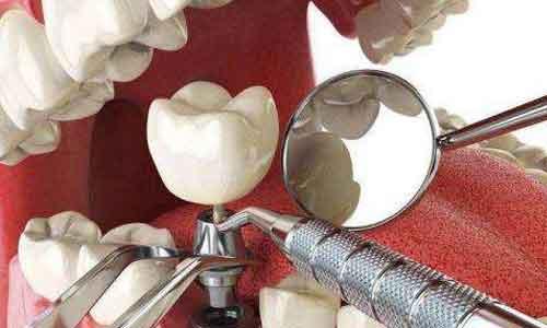 """缺一颗牙""""碍事""""嘛?美莱牙齿治疗可以补齐你的牙齿!"""