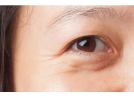 上海祛眼袋手术价格,美莱为您说明!