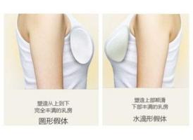 上海美容医院做隆胸费用大概要多少