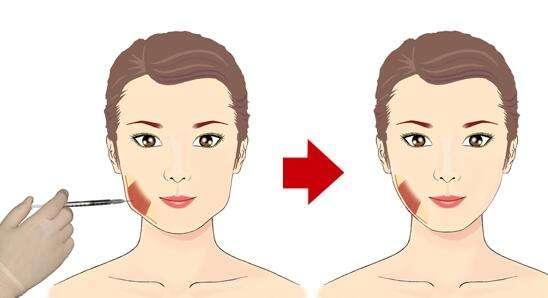 上海美莱打一支瘦脸针需要多少钱