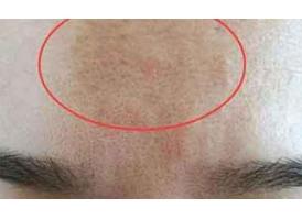 毛孔粗大有五大原因!上海有什么好的治疗方法吗?