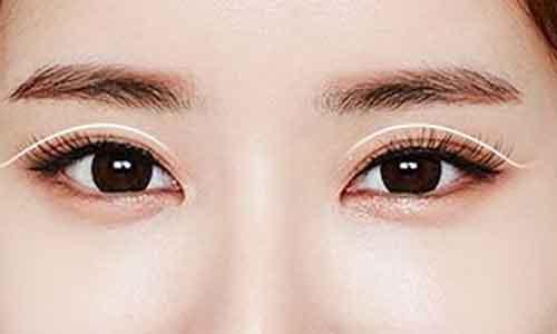 上海埋线双眼皮疼不,一次就有双眼皮的效果吗?