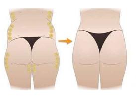 美莱吸脂手术减肥好不好,术后护理有哪些?