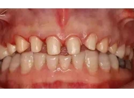 """补牙什么时候好,美莱医生表示补牙要""""趁早""""!"""
