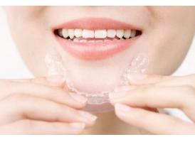 上海口腔做全瓷牙牙贴面多少钱?