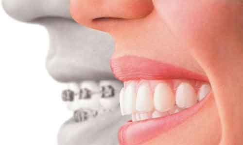 龅牙的危害是什么?美莱口腔医生科普!