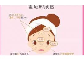 上海激光去雀斑后反弹了还能再做激光祛斑吗?