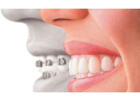 美容冠牙齿矫正效果真的那么好吗?
