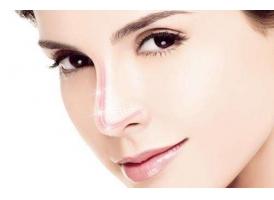 上海鼻尖整形,做自体软骨垫鼻尖有什么好处?
