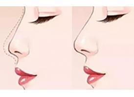 美莱李战强》》》线雕垫鼻尖一般多少钱?