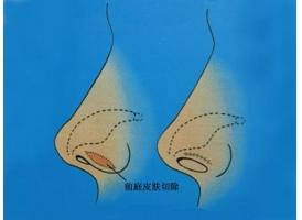 上海做鼻翼缩小费用,鼻部整形价格表贵不贵?