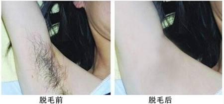 腋下脱毛上海脱毛医院多少钱?找准美莱价格效果双拥有!