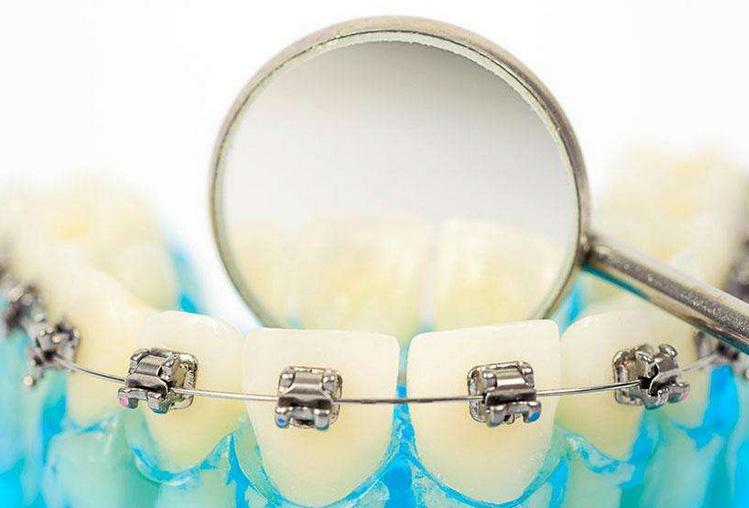 牙齿矫正医院那么多,上海哪家医院做矫正的效果好?
