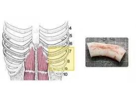 上海隆鼻怎样取肋软骨,对身体有什么伤害吗?