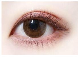 听听上海美莱医生讲解:割双眼皮的几点要处