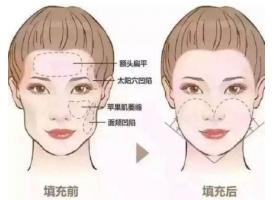 上海做注射玻尿酸全脸填充的价格是多少钱?