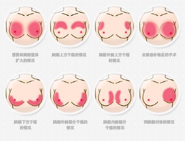 上海做丰胸,隆胸术前设计有哪些事项?