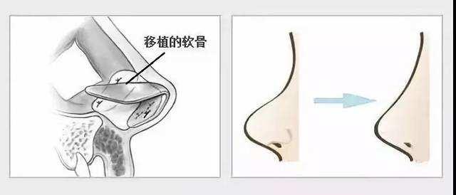 上海地区做自体耳软骨隆鼻效果更长久吗