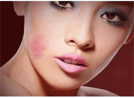 医美去除脸上的红血丝,上海哪家皮肤医院好?