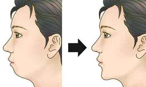 美莱假体隆鼻和线雕隆鼻的区别是什么?