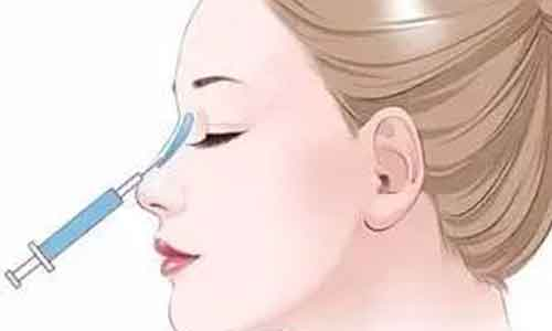 上海玻尿酸注射隆鼻要几针,需要多次注射吗?