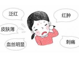 上海做激光祛红血丝一次一般多久见效?