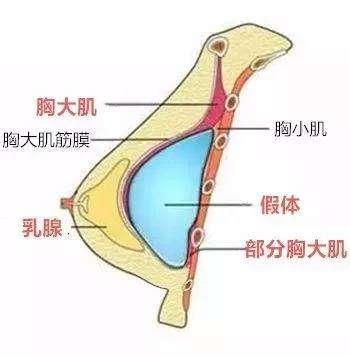上海美莱|做自体脂肪丰胸主要的好处有哪些?