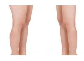 什么是吸脂瘦腿术?美莱科普!