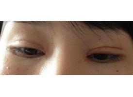 双眼皮整形失败的几种情况?美莱科普!