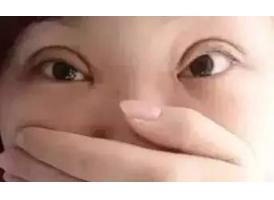 整形双眼皮失败的图片有哪些?美莱科普!